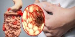 ما هو مرض كرونز