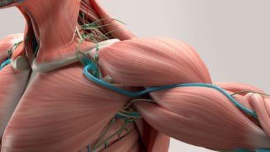 ما هو مرض ضمور العضلات